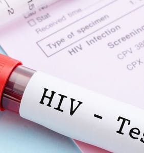 Dramatic drop in HIV infections among gay men in the UK