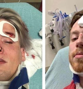 Police arrest 22-year-old suspect in connection with attack on Austin gay couple