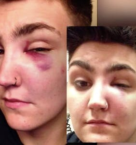 "Several men attacked this trans guy in front of his home for ""acting gay"""
