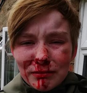 "Lesbian teen beaten bloody by ""friends"" over a matter of $12"