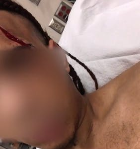Man beaten with shovel, slashed with box cutter in alleged antigay hate crime