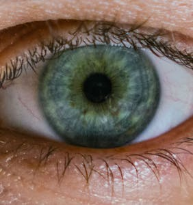 Man diagnosed with rare case of syphilis in both eyes