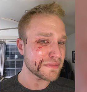 "His attackers yelled ""f*ggot"" as they beat him. Cops say it's not a hate crime."